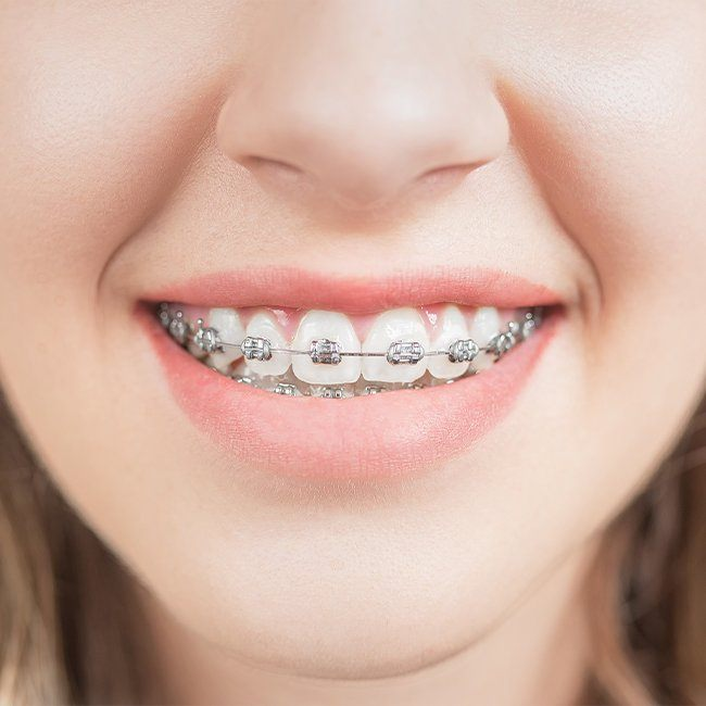 Closeup of smile with traditional orthodontics