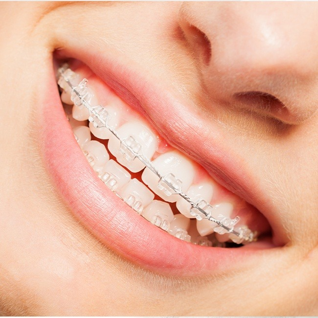 Closeup of teeth with tooth-colored six month smiles braces in place