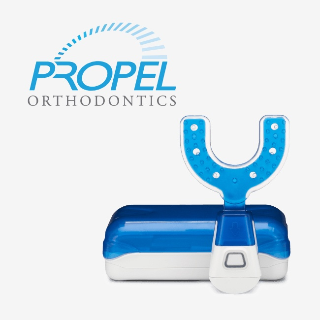 Propel accelerated orthodontics system
